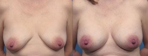Breast Augmentation Gallery - Patient 58470482 - Image 1