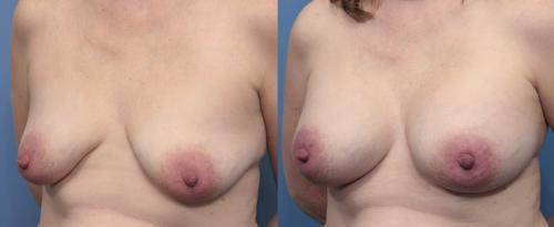 Breast Augmentation Gallery - Patient 58470482 - Image 2