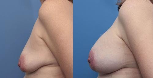 Breast Augmentation Gallery - Patient 58470482 - Image 3