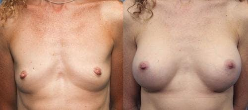 Breast Augmentation Gallery - Patient 58470483 - Image 1