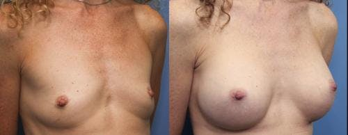 Breast Augmentation Gallery - Patient 58470483 - Image 2