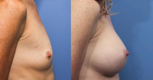 Breast Augmentation Gallery - Patient 58470483 - Image 3