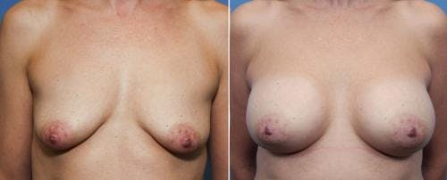Breast Augmentation Gallery - Patient 58470485 - Image 1
