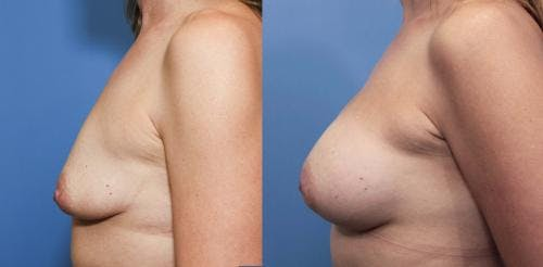 Breast Augmentation Gallery - Patient 58470485 - Image 2