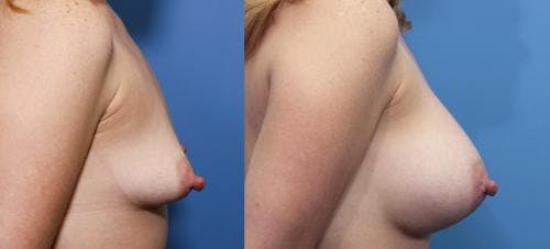 Breast Augmentation Gallery - Patient 58470486 - Image 2