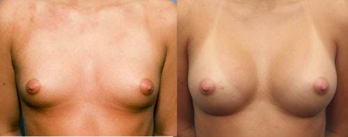 Breast Augmentation Gallery - Patient 58470487 - Image 1