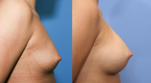 Breast Augmentation Gallery - Patient 58470487 - Image 2