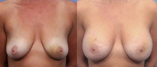 Breast Augmentation Gallery - Patient 58470488 - Image 1