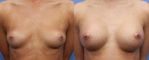 Breast Augmentation Gallery - Patient 58470489 - Image 1