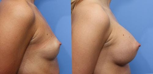 Breast Augmentation Gallery - Patient 58470489 - Image 2
