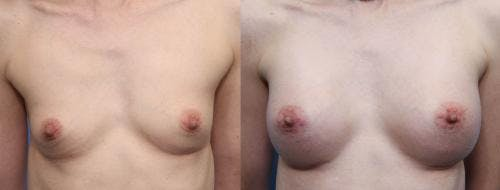 Breast Augmentation Gallery - Patient 58470490 - Image 1
