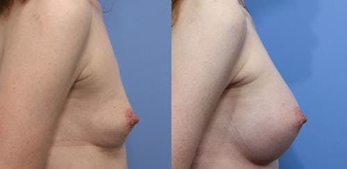 Breast Augmentation Gallery - Patient 58470490 - Image 2