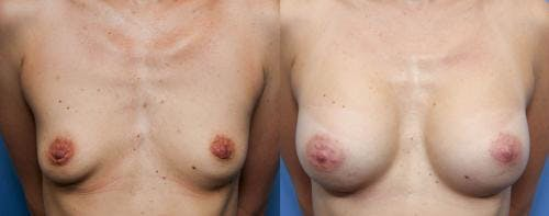 Breast Augmentation Gallery - Patient 58490376 - Image 1