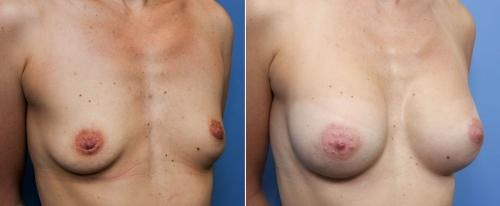 Breast Augmentation Gallery - Patient 58490376 - Image 2