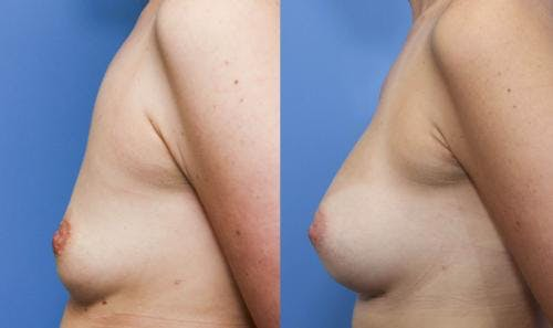Breast Augmentation Gallery - Patient 58490376 - Image 3