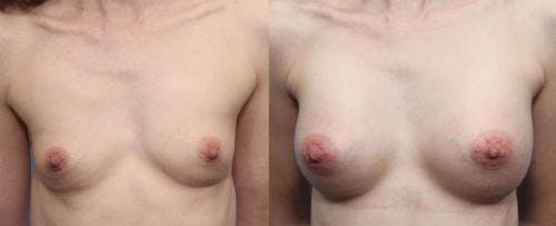 Breast Augmentation Gallery - Patient 58490377 - Image 1