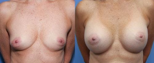 Breast Augmentation Gallery - Patient 58490378 - Image 1