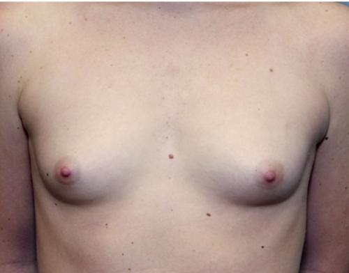 Breast Augmentation Gallery - Patient 58490379 - Image 1