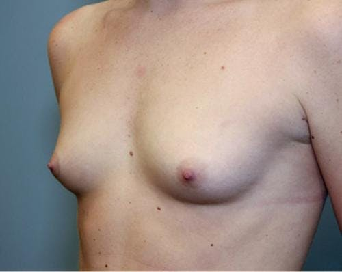 Breast Augmentation Gallery - Patient 58490379 - Image 3