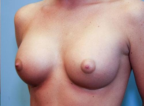 Breast Augmentation Gallery - Patient 58490379 - Image 4