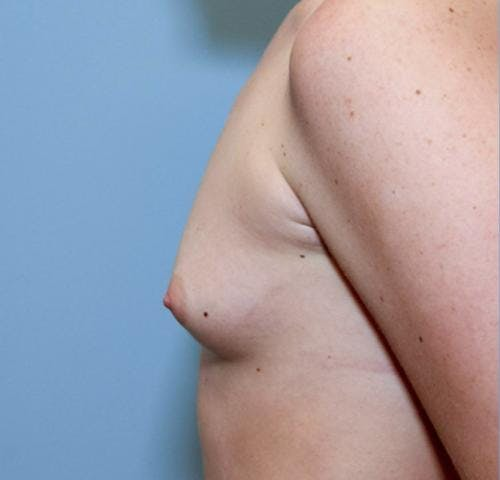 Breast Augmentation Gallery - Patient 58490379 - Image 5