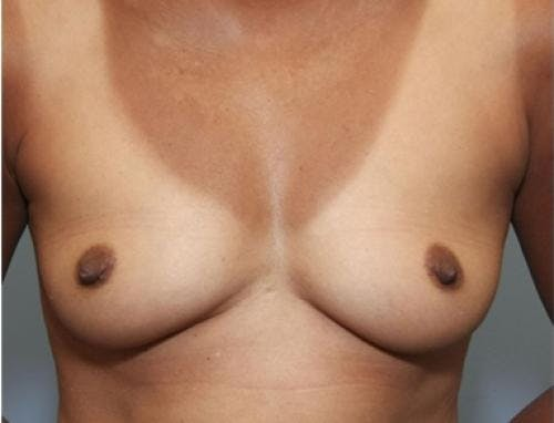 Breast Augmentation Gallery - Patient 58490380 - Image 1