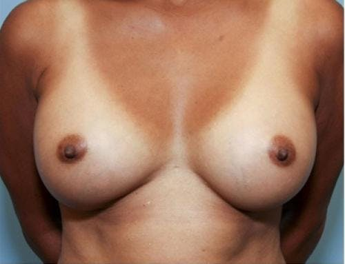 Breast Augmentation Gallery - Patient 58490380 - Image 2