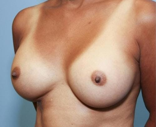 Breast Augmentation Gallery - Patient 58490380 - Image 4