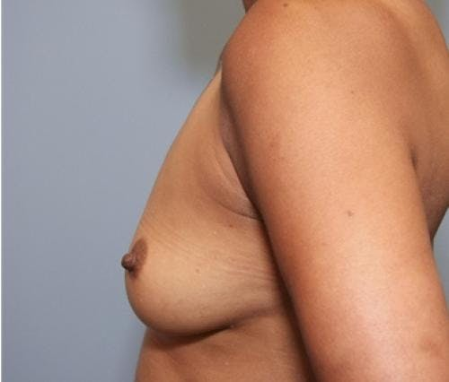 Breast Augmentation Gallery - Patient 58490380 - Image 5
