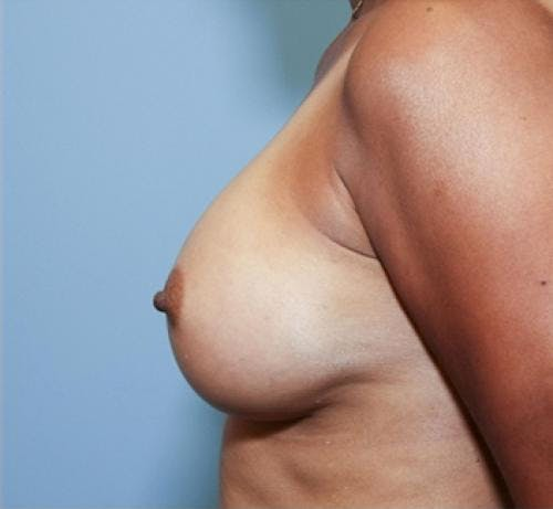 Breast Augmentation Gallery - Patient 58490380 - Image 6