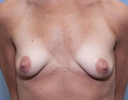 Breast Augmentation Gallery - Patient 58490382 - Image 1