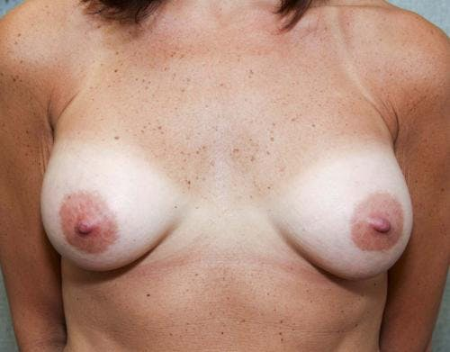 Breast Augmentation Gallery - Patient 58490382 - Image 2