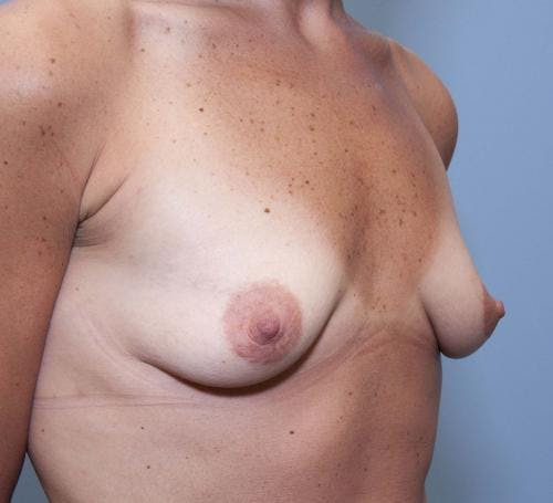 Breast Augmentation Gallery - Patient 58490382 - Image 3