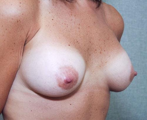 Breast Augmentation Gallery - Patient 58490382 - Image 4