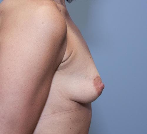 Breast Augmentation Gallery - Patient 58490382 - Image 5