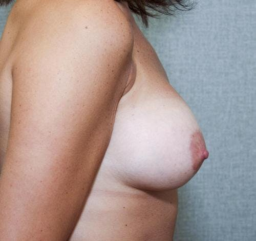 Breast Augmentation Gallery - Patient 58490382 - Image 6