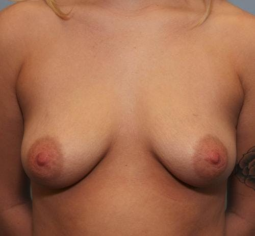 Breast Augmentation Gallery - Patient 58490384 - Image 1