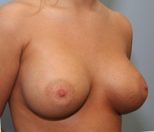 Breast Augmentation Gallery - Patient 58490384 - Image 4