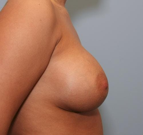 Breast Augmentation Gallery - Patient 58490384 - Image 6