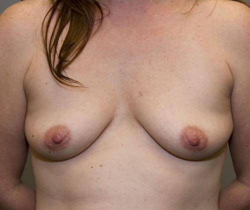 Breast Augmentation Gallery - Patient 58490388 - Image 1
