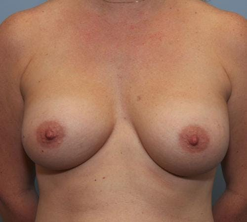 Breast Augmentation Gallery - Patient 58490388 - Image 2