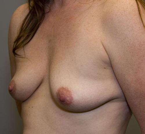 Breast Augmentation Gallery - Patient 58490388 - Image 3