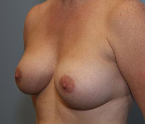 Breast Augmentation Gallery - Patient 58490388 - Image 4