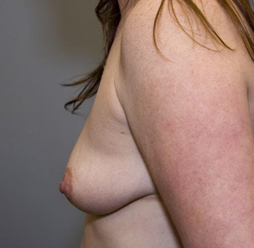 Breast Augmentation Gallery - Patient 58490388 - Image 5
