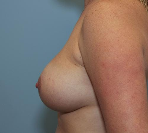 Breast Augmentation Gallery - Patient 58490388 - Image 6