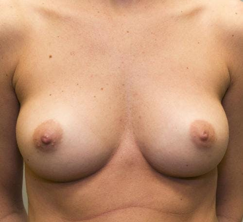 Breast Augmentation Gallery - Patient 58490389 - Image 1