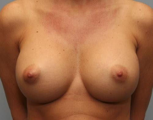 Breast Augmentation Gallery - Patient 58490389 - Image 2
