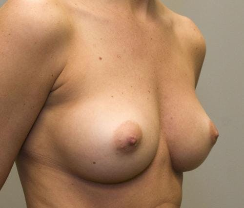 Breast Augmentation Gallery - Patient 58490389 - Image 3