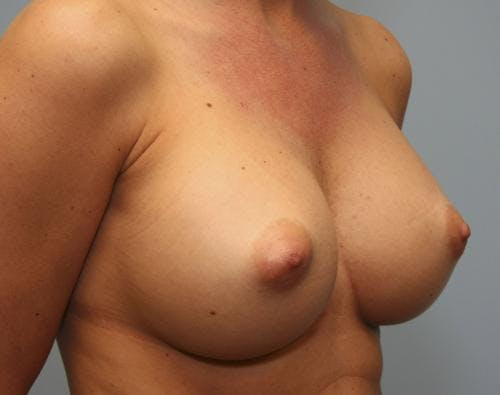 Breast Augmentation Gallery - Patient 58490389 - Image 4