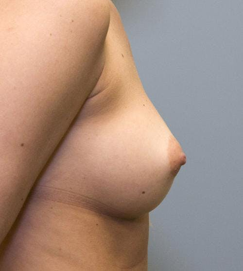 Breast Augmentation Gallery - Patient 58490389 - Image 5